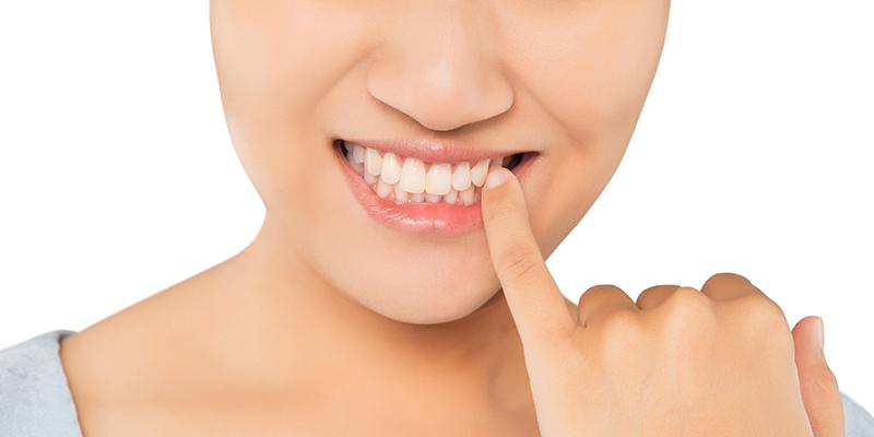 Ce sunt pungile parodontale și de ce sunt periculoase?
