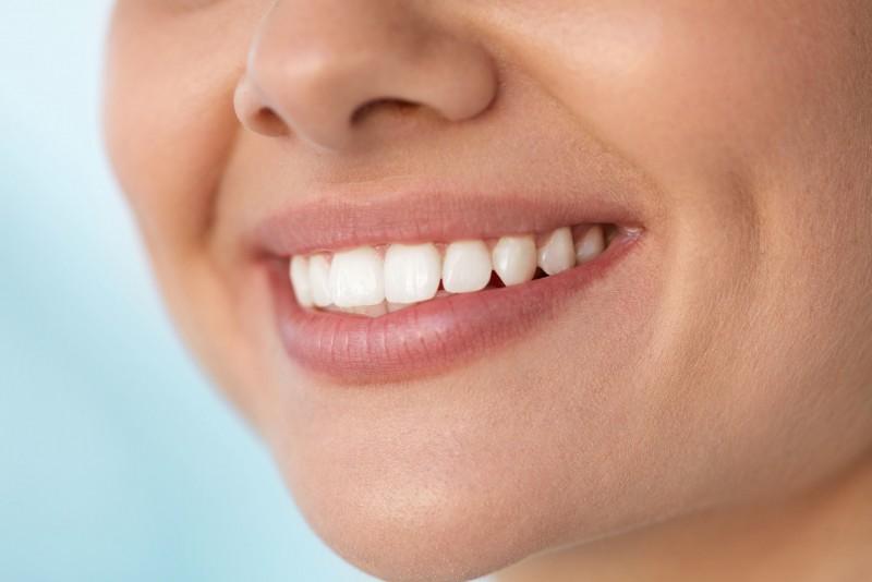 Modalitati de a obtine dinti mai albi